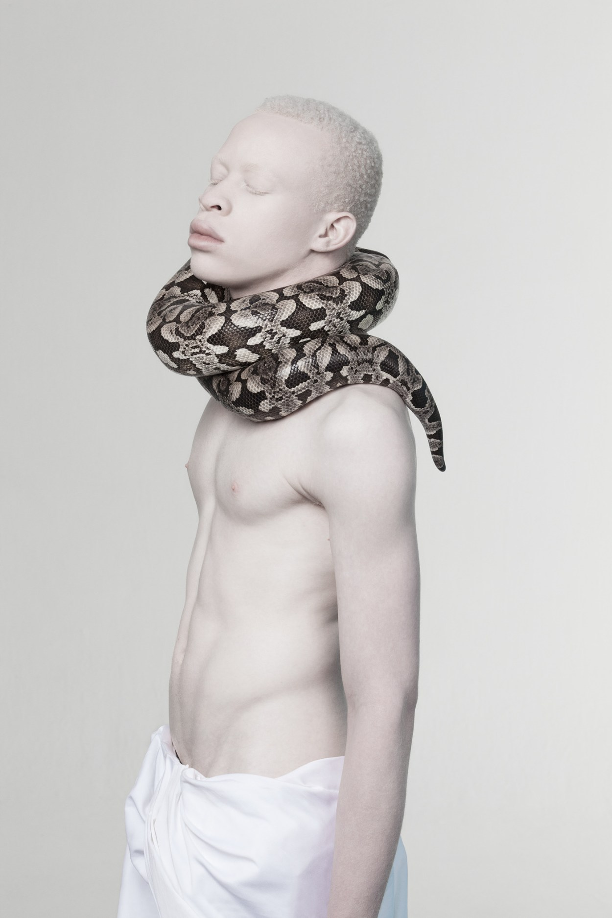 Models with Albinism Challenge Standards of Beauty 5