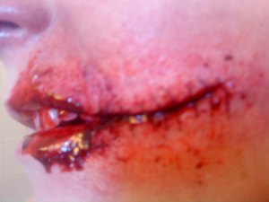 Stitched up face