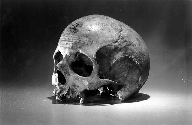Skull of Alexander Pearce