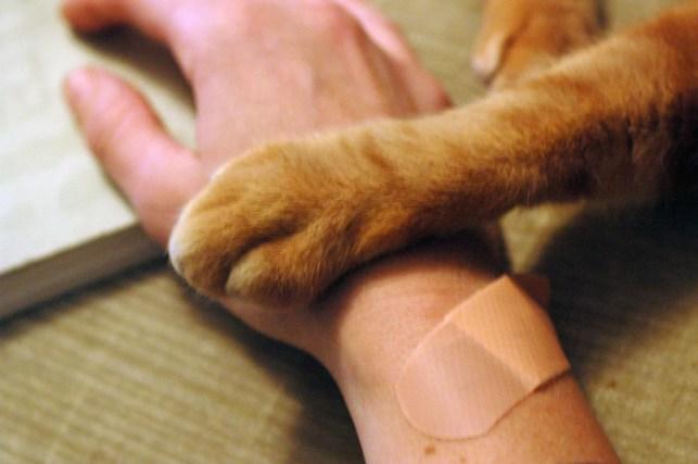 Uma mão humana enfaixada e uma pata de gato.