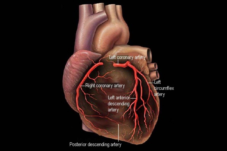 Coronary Arteries And Heart Disease