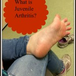 Juvenile Arthritis – What it Is and What it Does #health