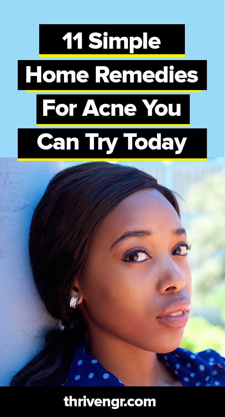 Simple Home Remedies for Acne (Pimples) #skincare