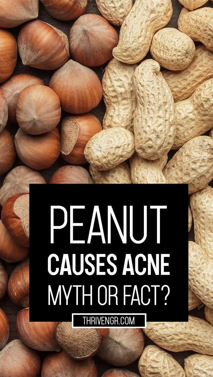 Groundnut Causes Pimples