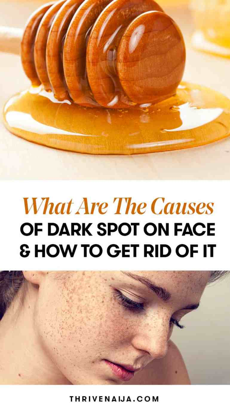 dark spot on face causes