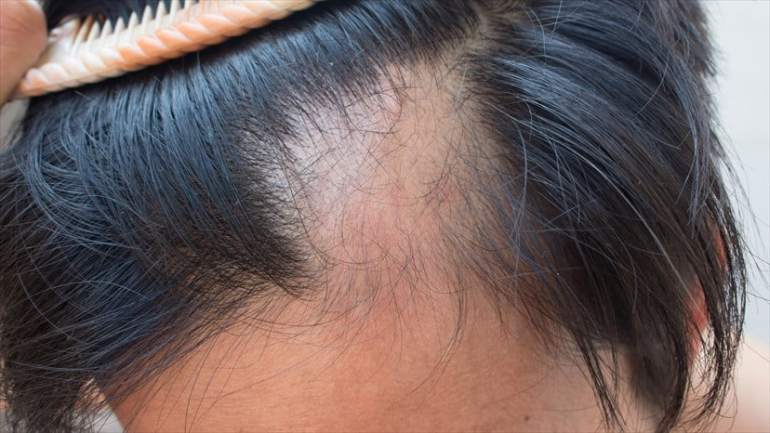 Alopecia Areata illness that causes hair loss