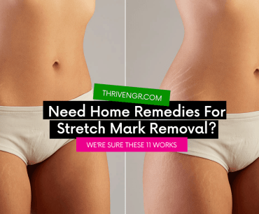 home remedies for stretch marks removal