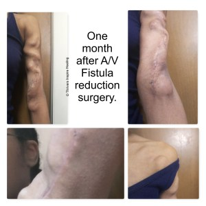 One month after A/V Fistula reduction surgery. 4 pics