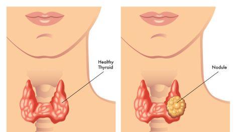 thyroid nodule comparison with normal thyroid