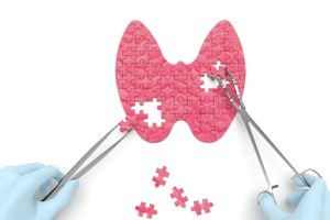 thyroid puzzle