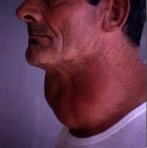 Swollen Thyroid