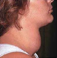 Enlarged Thyroid Gland