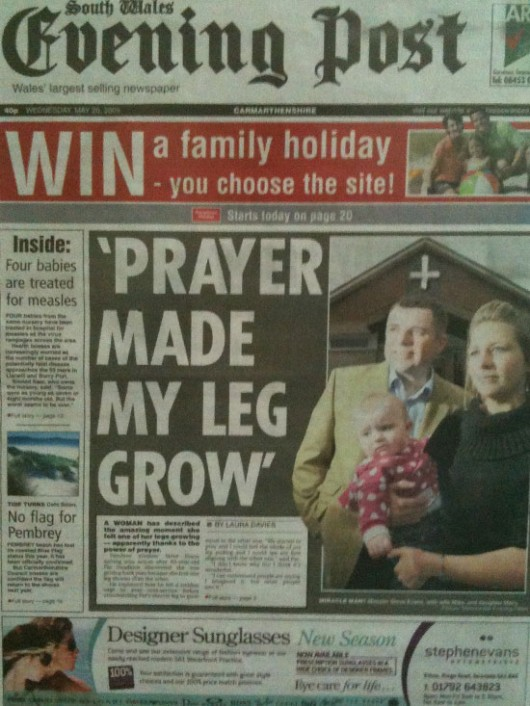 Prayer Made My Leg Grow Out