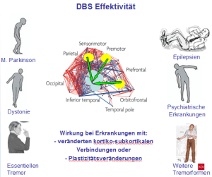 deep brain stimulation, tiefe hirnstimulation