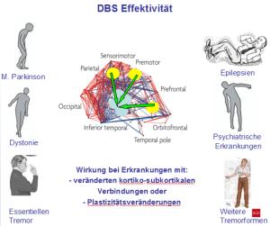 deep brain stimulation, tiefe hirnstimulation