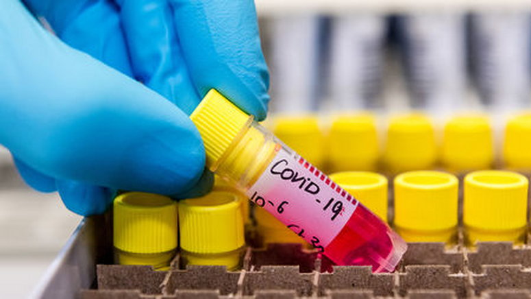 32 nurses and midwives test positive for COVID-19 in Ghana