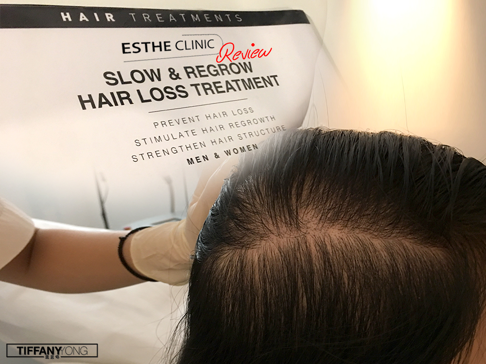 Estheclinic Slow Regrow Hair Loss Treatment Review