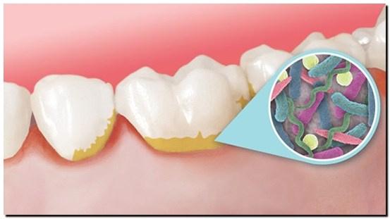 Cara Alami Hilangkan Plak Gigi