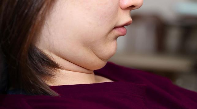 Tips Hilangkan Double Chin Secara Alami