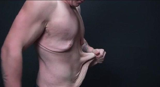 Tips Kencangkan Kulit Kendur Usai Turunkan Berat Badan