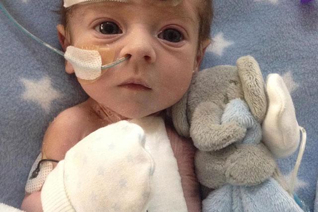 tilestwra.com   Οι γιατροί δεν έδιναν καμία ελπίδα. Το μωράκι αυτό όμως ακόμη ζει και αγωνίζεται.