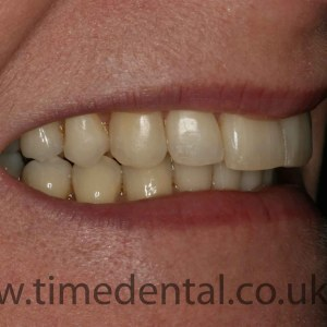 Clear orthodontic treatment in aldershot time dental when looking at photos of yourself have you ever thought if i had straight teeth i would smile more often misaligned crooked spaced and uneven teeth solutioingenieria Image collections