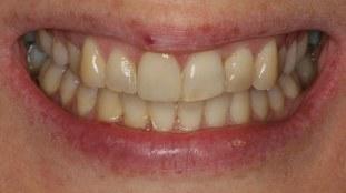 fleet-dentist