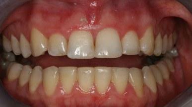 adult-orthodontic-braces