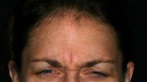 wrinkles-on-face