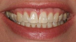 orthodontics-painful