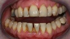 reasons-to-visit-dental-hygienist