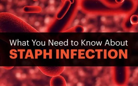 symptoms, signs of Staph Infection