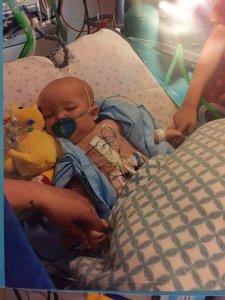 Baby Oscar after heart surgery