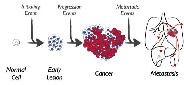 Tümör hücreleri
