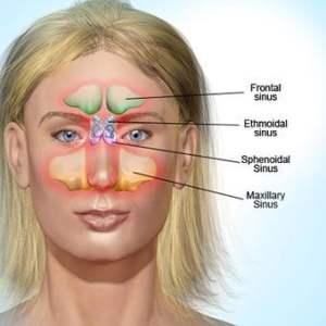 sinus enfeksiyonu nedir