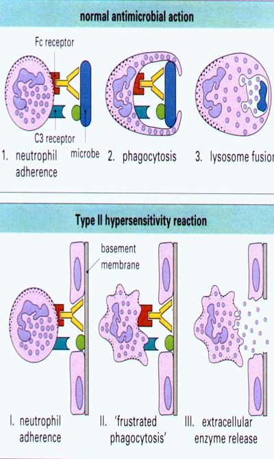 tip 2 hipersentivite