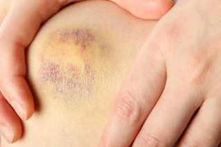 Treating bruises is just one of many witch hazel uses.