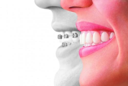 Invisalign Teen Straight Talk on Straight Teeth