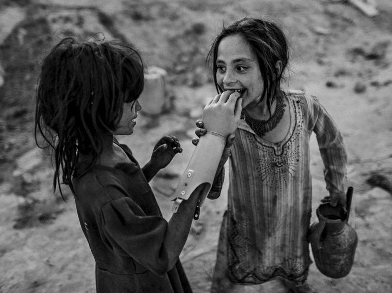Des jeunes Afghanes jouant avec une prothèse de main, au sud de Kaboul. (Majid Saeedi/Prix Lucas Dolega). Source : nouvelobs.com