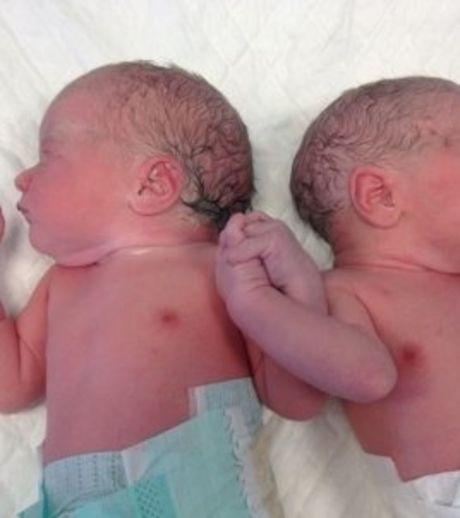 Deux jumeaux qui se tiennent la main à la naissance