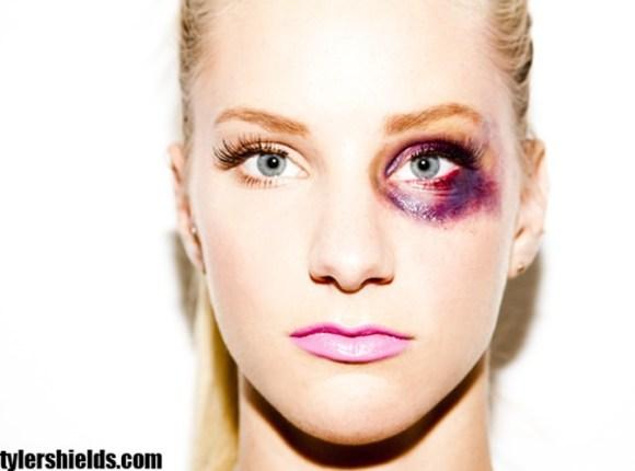Heather-Morris-la-star-de-Glee-et-ses-photos-polemiques-en-femme-battue_portrait_w674