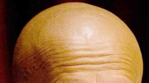 Les cellules transplantées reprogrammer la peau à se développer de nouveaux follicules pileux