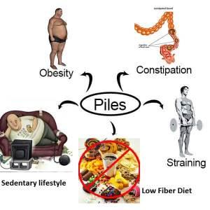 causes of piles in siddha medicine moolam siddha maruthuvam in tamil piles varuvatharku karanam