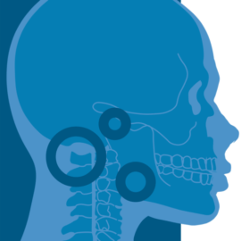 TMJ Treatment Atlanta