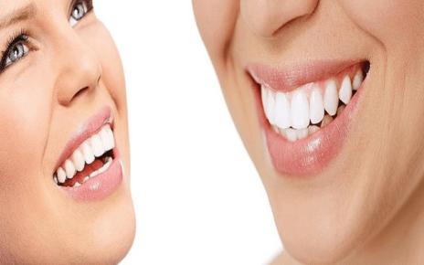 pretty and clean teeth