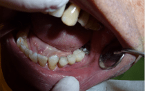tooth fixing