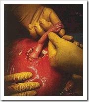 Aborto en la clínica