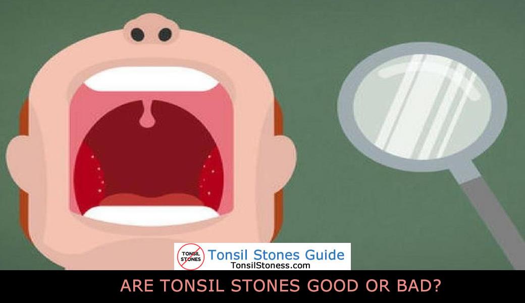 Tonsil Stones Symptoms 9 Common Symptoms Of Tonsil Stones