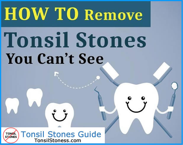 How to Remove Tonsil Stones?