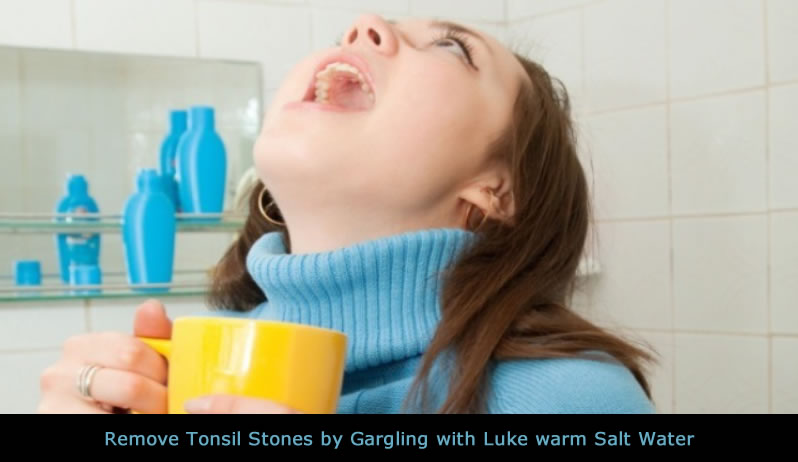 Remove Tonsil Stones by Gargling